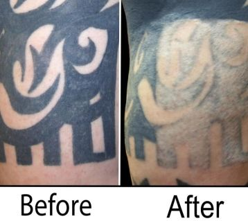 Tattoo Removal Product - A Great Alternative for Getting Rid of ...